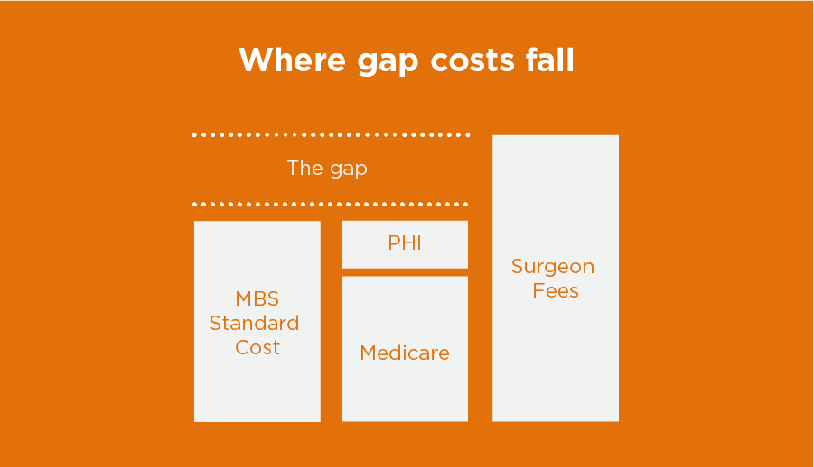 Where gap costs fall graphic